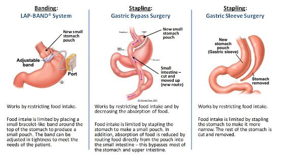 Comparing Lap Band with Gastric Sleeve and Gastric Bypass