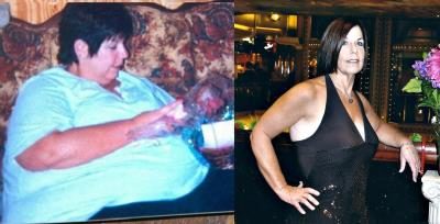 Sandi before and after Weight Loss Surgery