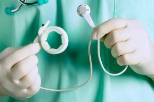 Lap Band Surgery