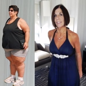 Staying Hydrated For Long Term Weight Loss Surgery Success